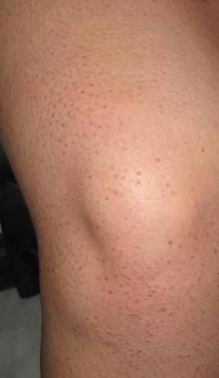 حكمة قول مأثور ممتاز أصبح غاضبا علاج نمو الشعر تحت الجلد في الساقين Sjvbca Org