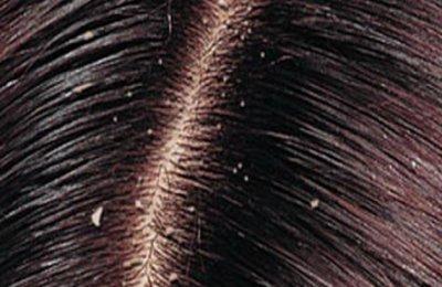 كيف تتجنبي ظهور قشره الشعر